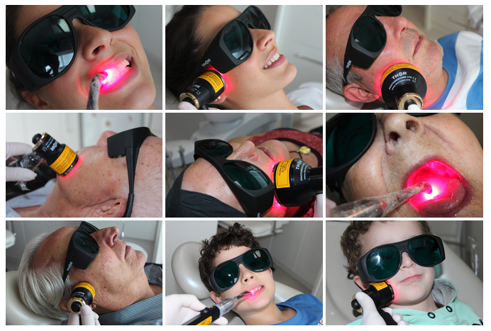 Photobiomodulation (PBM) reduces severity and duration of oral mucositis, and can be used for prevention.